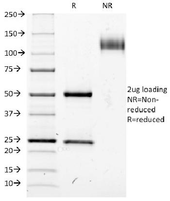 Anti-CD25 / IL2RA (Activated Lymphocyte Marker) Monoclonal Antibody(Clone: IL2RA/423)