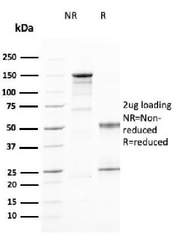 Anti-CD25 / IL2RA (Activated Lymphocyte Marker) Monoclonal Antibody(Clone: IL2RA/2394)