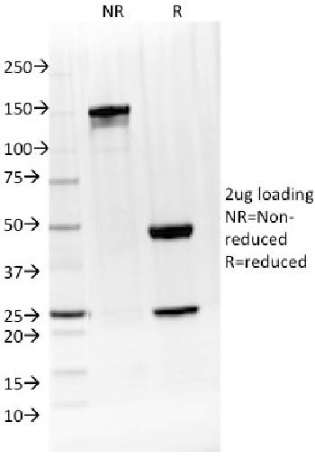 Anti-IL-4 / Interleukin 4 Monoclonal Antibody(Clone: IL4/1597)