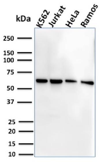 Anti-CD127 / IL7R (Marker of T-Reg Cells) Monoclonal Antibody(Clone: IL7R/2751)