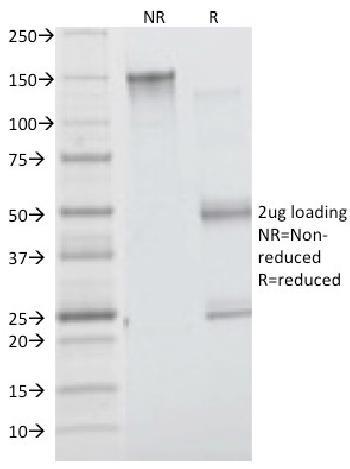 Anti-Insulin Receptor Alpha Monoclonal Antibody(Clone: INSR/1661)