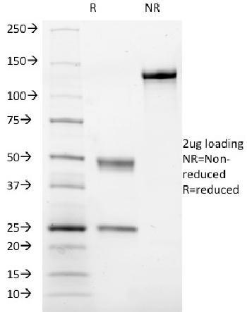 Anti-CD41a / Integrin-b (Platelet Marker) Monoclonal Antibody(Clone: ITGA2B/1036)
