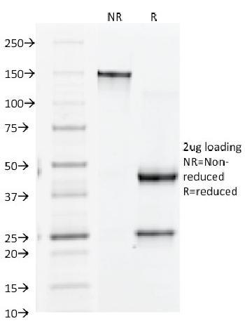 Anti-CD61 / Integrin 3 / Platelet Glycoprotein IIIa (Platelet Marker) Monoclonal Antibody(Clone: Y2/51)