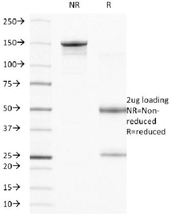 Anti-CD104 (Integrin Beta-4) (Squamous Cell Carcinoma Antigen) Monoclonal Antibody(Clone: UM-A9)