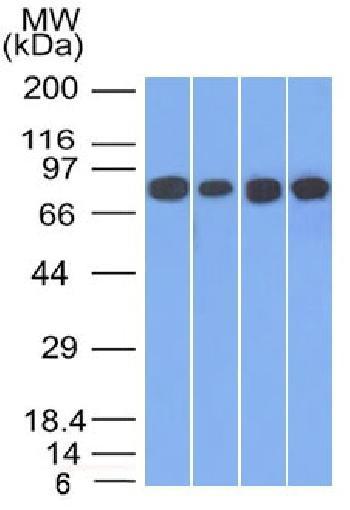 Anti-Catenin, gamma (Cardiomyocyte Marker) Monoclonal Antibody(Clone: 110000)