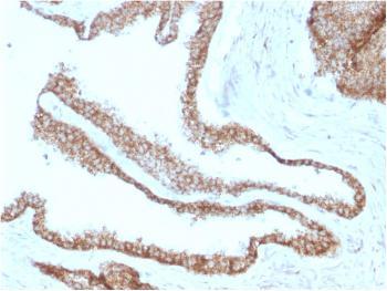 Anti-Catenin, gamma (Cardiomyocyte Marker) Monoclonal Antibody(Clone: CTNG/1664)