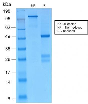 Anti-Catenin, gamma (Cardiomyocyte Marker) Monoclonal Antibody(Clone: CTNG/2155R)