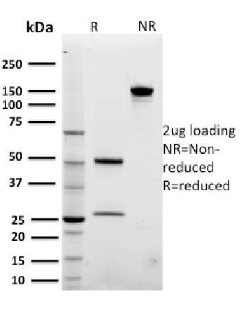 Anti-ARF1 (Golgi Apparatus Marker) Monoclonal Antibody(Clone: 3F1)