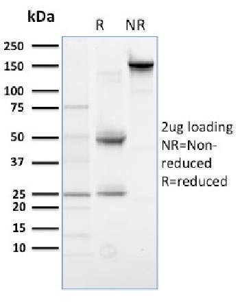 Anti-PLK1 (Marker of Mitosis) Monoclonal Antibody(Clone: AZ44)