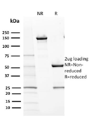 Anti-CD117 / c-Kit (Marker for Gastrointestinal Stromal Tumors) Monoclonal Antibody(Clone: KIT/2670)