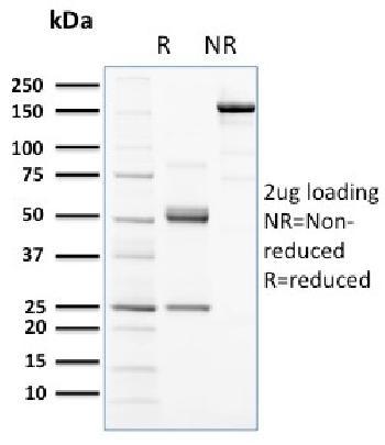 Anti-CD117 / c-Kit (Marker for Gastrointestinal Stromal Tumors) Monoclonal Antibody(Clone: KIT/2672)