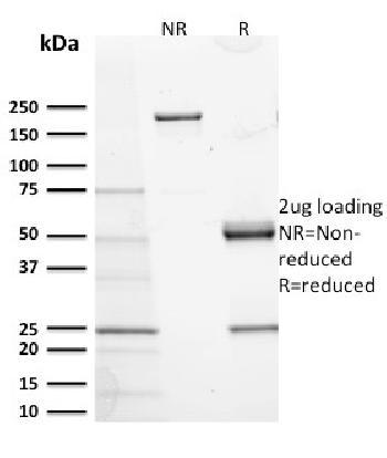 Anti-CD117 / c-Kit (Marker for Gastrointestinal Stromal Tumors) Monoclonal Antibody(Clone: KIT/2673)