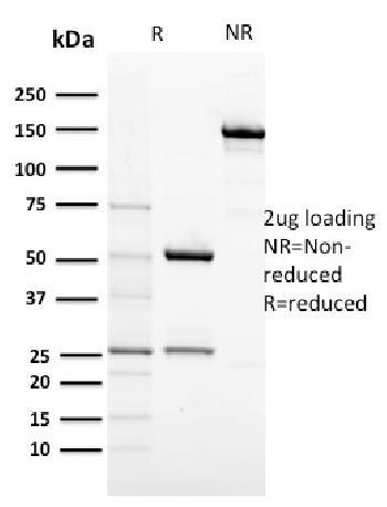 Anti-CD117 / c-Kit (Marker for Gastrointestinal Stromal Tumors) Monoclonal Antibody(Clone: KIT/2674)