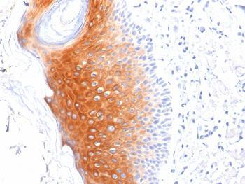 Anti-Cytokeratin 1 (Suprabasal Keratinocyte Marker) Monoclonal Antibody(Clone: LHK1)
