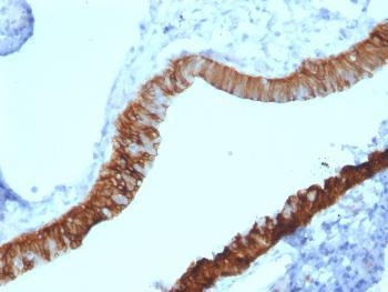Anti-Cytokeratin 3 (KRT3) (Corneal Epithelial Marker) Monoclonal Antibody(Clone: KRT3/2130)