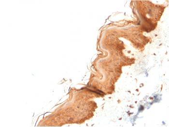 Anti-Cytokeratin 4 (KRT4) Monoclonal Antibody(Clone: KRT4/2804)