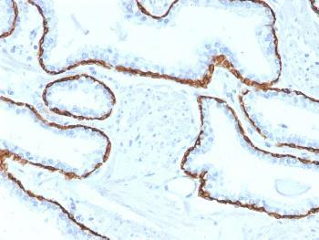 Anti-Cytokeratin 5 (KRT5) (Basal, Myoepithelial & Mesothelial Cell Marker) Monoclonal Antibody(Clone: KRT5/2080)