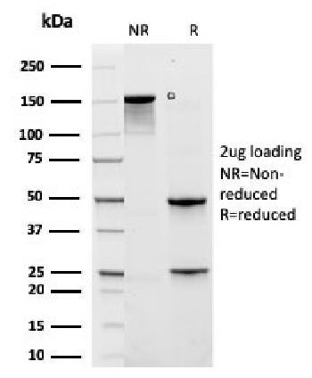 Anti-Cytokeratin 6A (KRT6A) (Basal Cell Marker) Monoclonal Antibody(Clone: rKRT6A/2100)