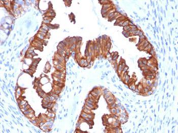 Anti-Cytokeratin 7 (Glandular and Transitional Epithelial Marker) Monoclonal Antibody(Clone: rOV-TL12/30)