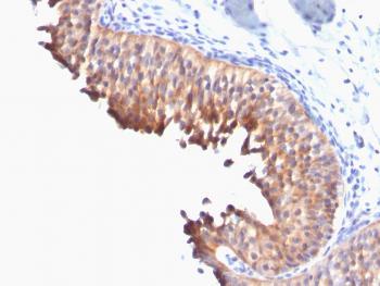 Anti-Cytokeratin 10 (Suprabasal Epithelial Marker) Monoclonal Antibody(Clone: DE-K10)