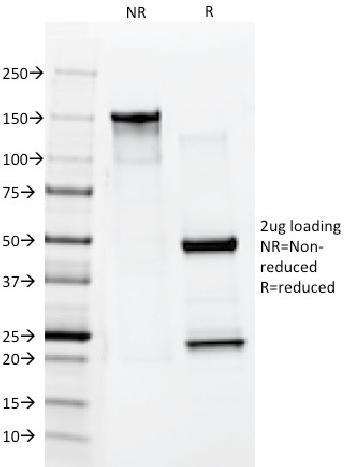 Anti-Cytokeratin 10 (Suprabasal Epithelial Marker) Monoclonal Antibody(Clone: AE20)
