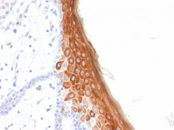 Anti-Cytokeratin 10 (KRT10) (Suprabasal Epithelial Marker) Monoclonal Antibody(Clone: rKRT10/844)