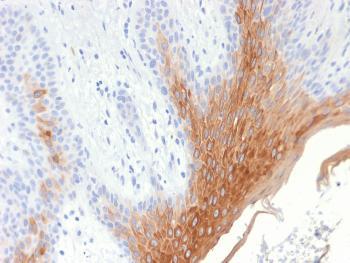 Anti-Cytokeratin 10 (KRT10) (Suprabasal Epithelial Marker) Monoclonal Antibody(Clone: KRT10/1990R)