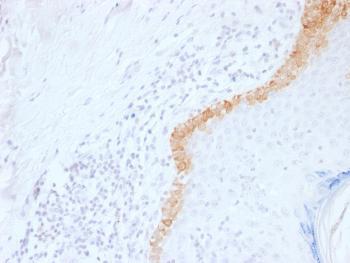 Anti-Cytokeratin 15 (Esophageal Squamous Cell Carcinoma Marker) Monoclonal Antibody(Clone: LHK15)