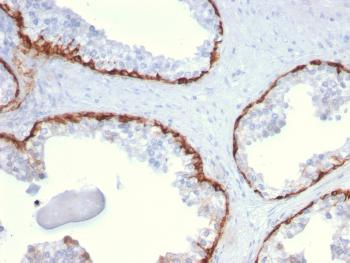 Anti-Cytokeratin 15 (Esophageal Squamous Cell Carcinoma Marker) Monoclonal Antibody(Clone: KRT15/2959)