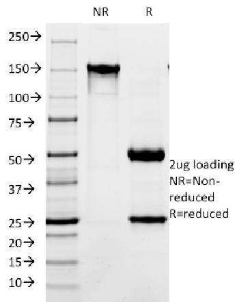 Anti-CD171 / NCAM-L1 (L1 Cell Adhesion Molecule) Monoclonal Antibody(Clone: SPM275)