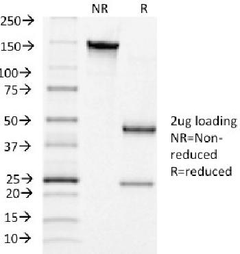 Anti-Luteinizing Hormone / Choriogonadotropin Receptor (LHCGR) Monoclonal Antibody(Clone: LHCGR/1415)