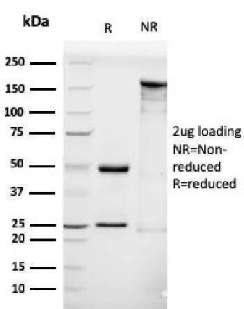 Anti-Luteinizing Hormone / Choriogonadotropin Receptor (LHCGR) Monoclonal Antibody(Clone: LHCGR/1416)