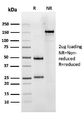 Anti-Luteinizing Hormone / Choriogonadotropin Receptor (LHCGR) Monoclonal Antibody(Clone: LHCGR/1417)