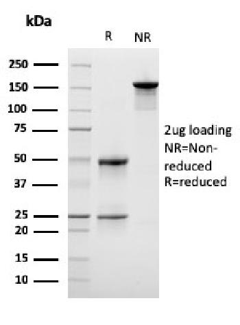 Anti-Lymphocyte Specific Protein 1 (LSP1) / pp52 Monoclonal Antibody(Clone: LSP1/3042)