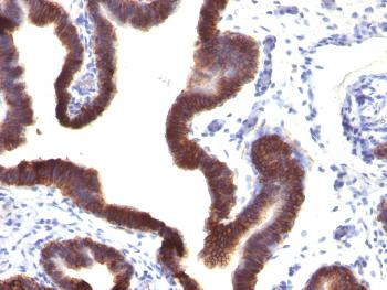 Anti-Ep-CAM / CD326 (Extracellular Domain) (Epithelial Marker) Monoclonal Antibody(Clone: EGP40/1120)