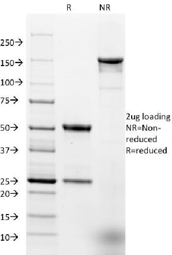 Anti-Ep-CAM / CD326 (Extracellular Domain) (Epithelial Marker) Monoclonal Antibody(Clone: EGP40/1384)