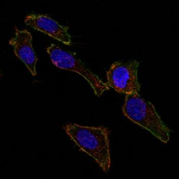Anti-Ep-CAM / CD326 (Extracellular Domain) (Epithelial Marker) Monoclonal Antibody(Clone: EGP40/826)