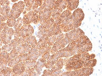 Anti-Ep-CAM / CD326 (Extracellular Domain) (Epithelial Marker) Monoclonal Antibody(Clone: EGP40/2041R)