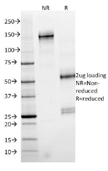 Anti-SMAD4 (Pancreatic Adenocarcinoma Marker) Monoclonal Antibody(Clone: SMAD4/2524)