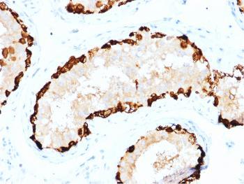 Anti-Melanoma Antigen Family A, 4 / MAGEA4 Monoclonal Antibody(Clone: CPTC-MAGEA4-1)