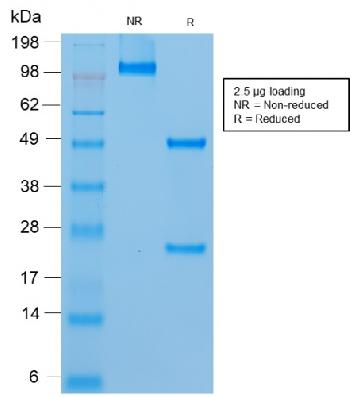 Anti-MCAM (Melanoma Cell Adhesion Molecule) / MUC18 / CD146 Monoclonal Antibody(Clone: rMUC18/1130)