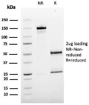 Anti-MCAM (Melanoma Cell Adhesion Molecule) / MUC18 / CD146 Monoclonal Antibody(Clone: MCAM/3179)