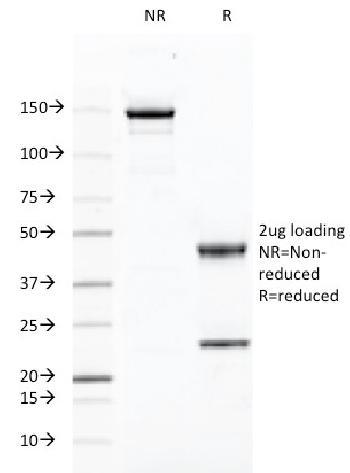 Anti-CD46 (Membrane Cofactor Protein) Monoclonal Antibody(Clone: 169-1-E4.3)