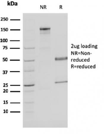 Anti-Malate dehydrogenase 1 NAD (soluble) Monoclonal Antibody(Clone: CPTC-MDH1-1)