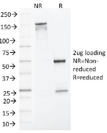 Anti-MLH1 (MutL Homolog 1) Monoclonal Antibody(Clone: MLH1/1324)