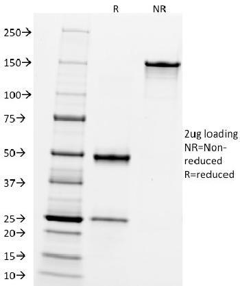 Anti-CD10 (Membrane Metalloendopeptidase) Monoclonal Antibody(Clone: FR4D11)