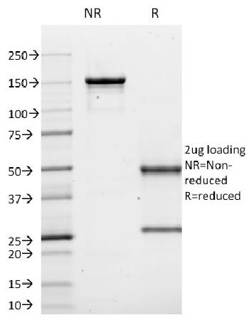 Anti-CD10 (Membrane Metalloendopeptidase) Monoclonal Antibody(Clone: MME/1620)