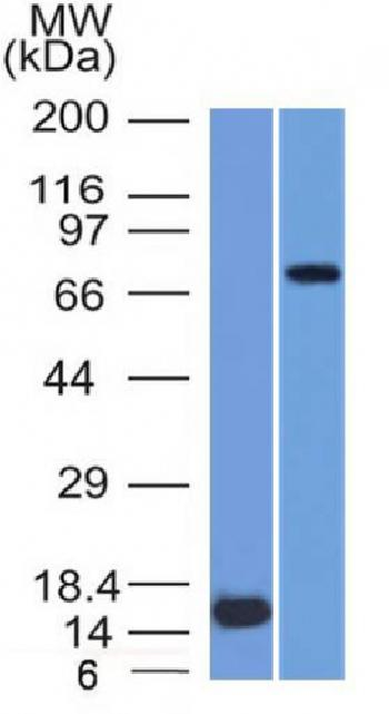 Anti-MMP2 / Collagenase Type IV A (Tumor Metastasis Marker) Monoclonal Antibody(Clone: MMP2/1501)
