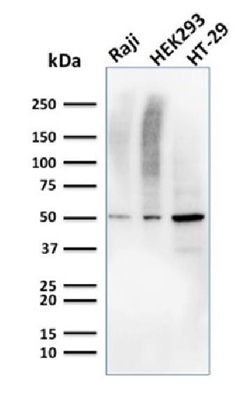 Anti-MMP3 (Marker of Metastasis and Rheumatoid Arthritis) Monoclonal Antibody(Clone: MMP3/2655)
