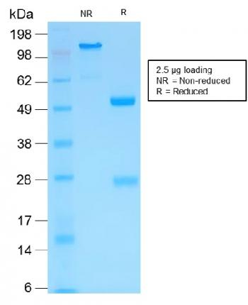 Anti-MMP3 (Marker of Metastasis and Rheumatoid Arthritis) Monoclonal Antibody(Clone: MMP3/1994R)